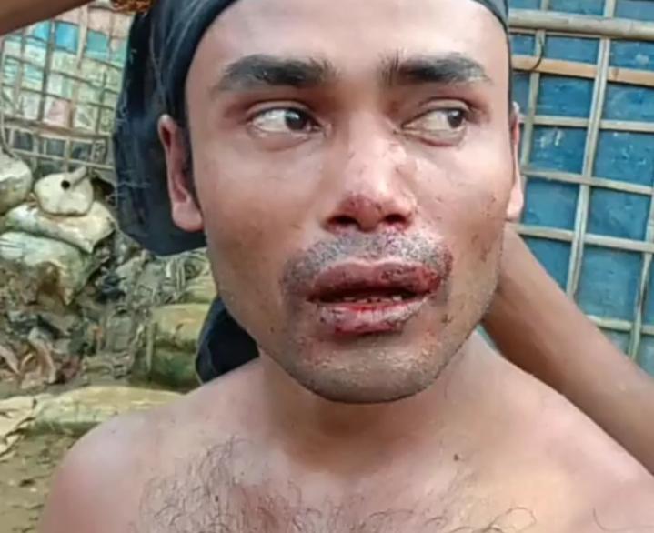 রোহিঙ্গা ক্যাম্পে সংঘর্ষের ঘটনায় আটক- ১২ : অভিযান অব্যাহত